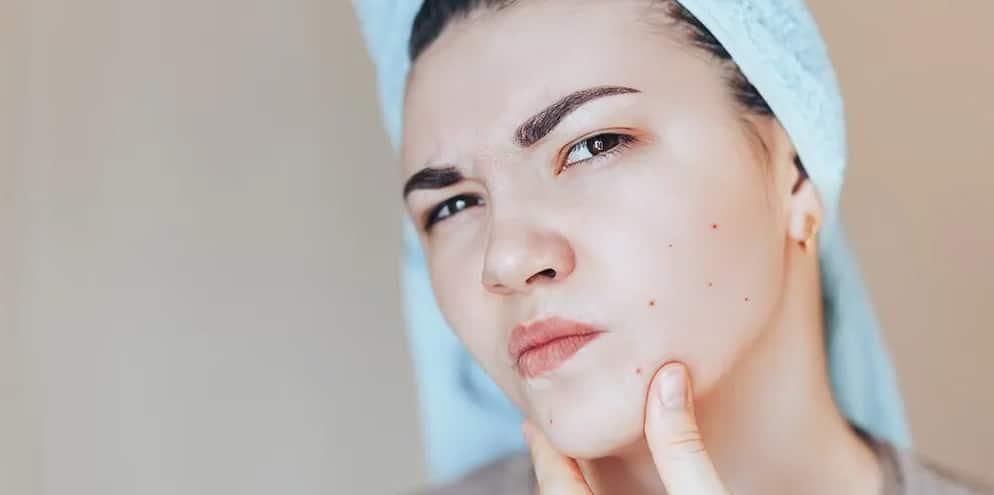 Problèmes de peau : les traitements naturels